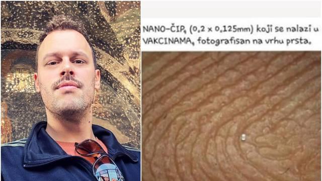 Kojić na društvenim mrežama dijeli propagandu protiv cjepiva
