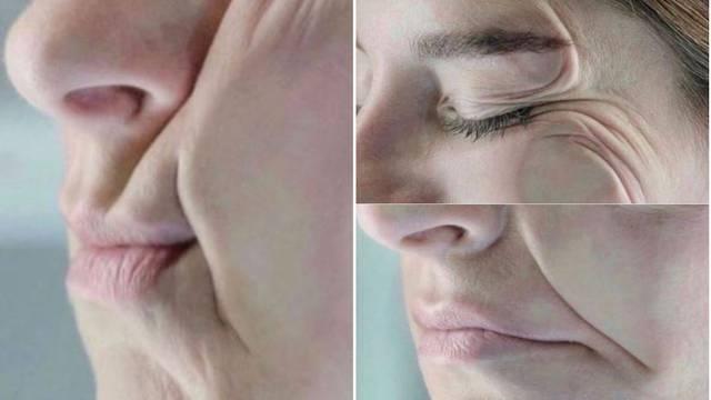 Pogledajte kako spavanje na boku gužva lice i stvara bore