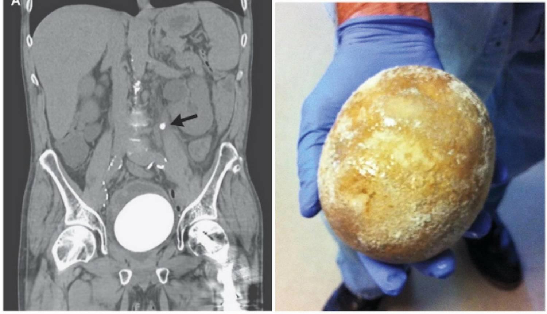 Liječnici iz muškarca izvadili kamenac veličine nojevog jajeta