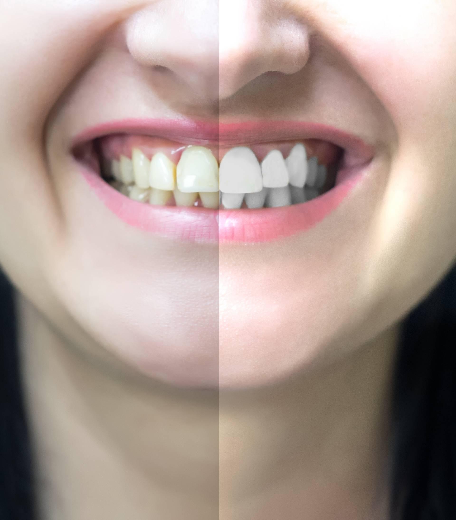 Ovo su razlozi zbog kojih imate žute zube, a ne biserno bijele