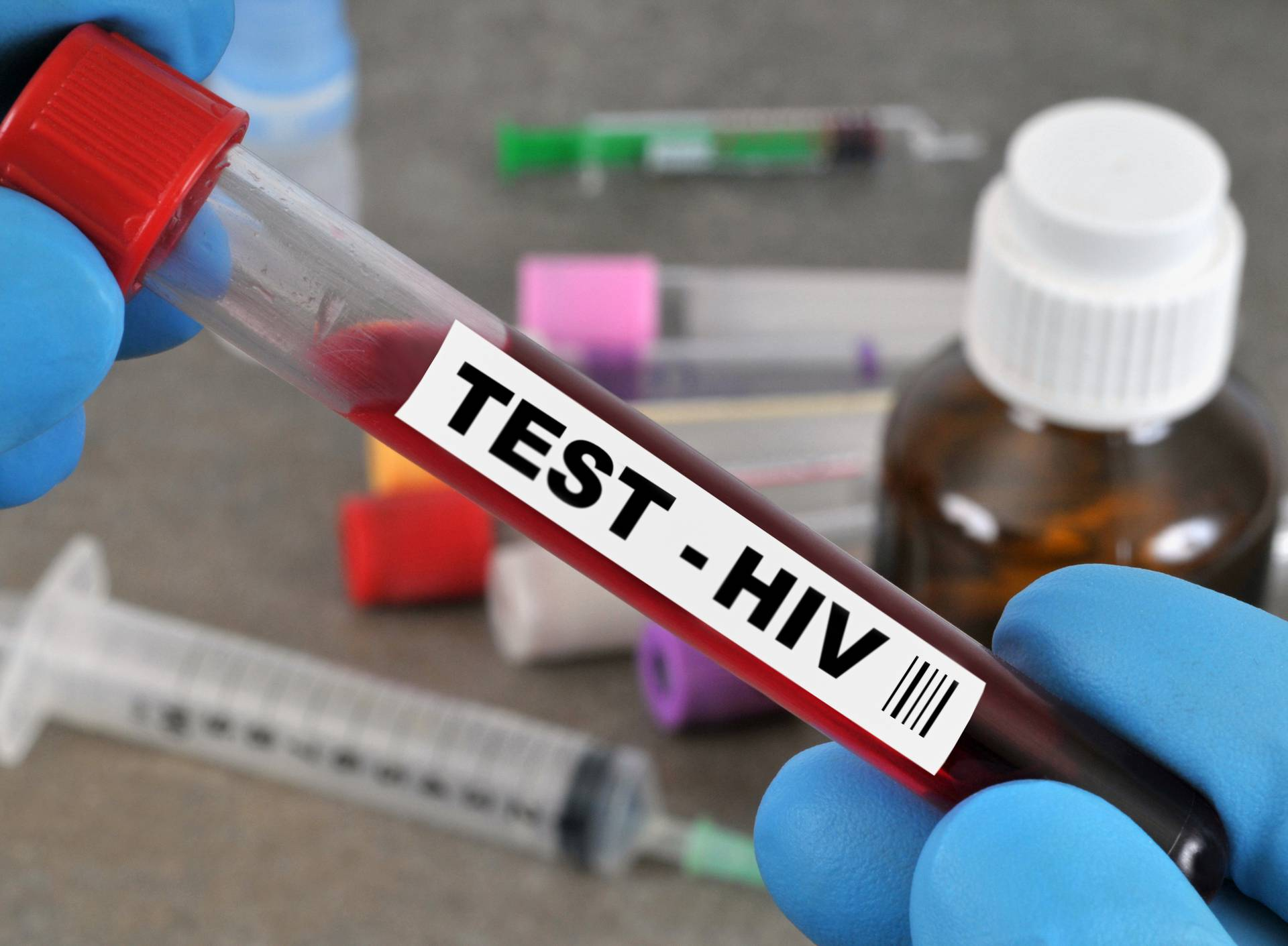 Prva žena za koju vjeruju da se izliječila od HIV-a  bez terapije