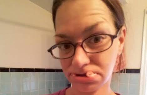 Do 30. godine sam izgubila zube, ali mužu sam još lijepa