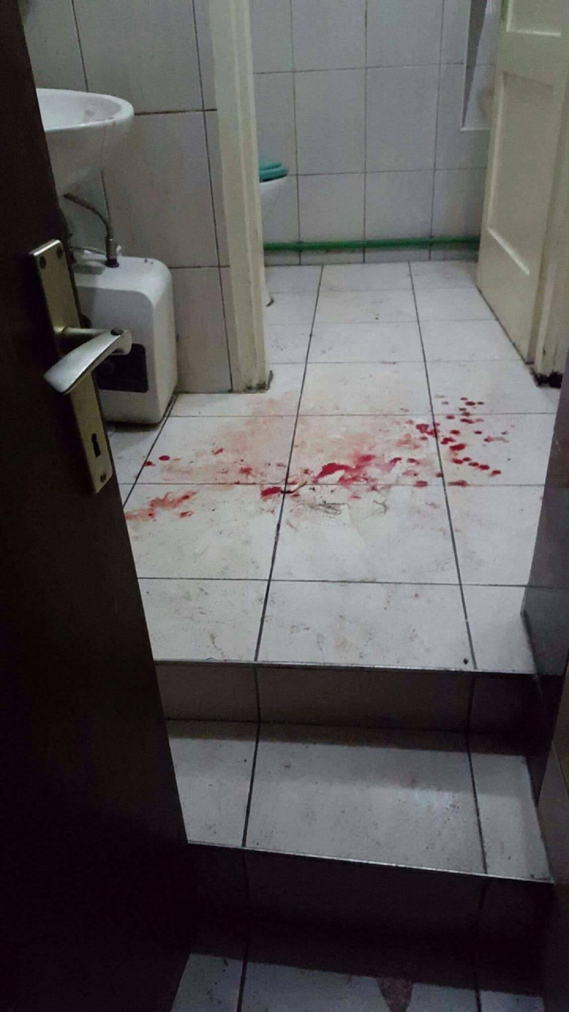 Sve zbog dečka: Srednjoškolka je učenicu izrezala čašom