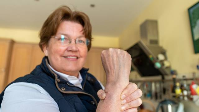 Farmer wears chip in her wrist