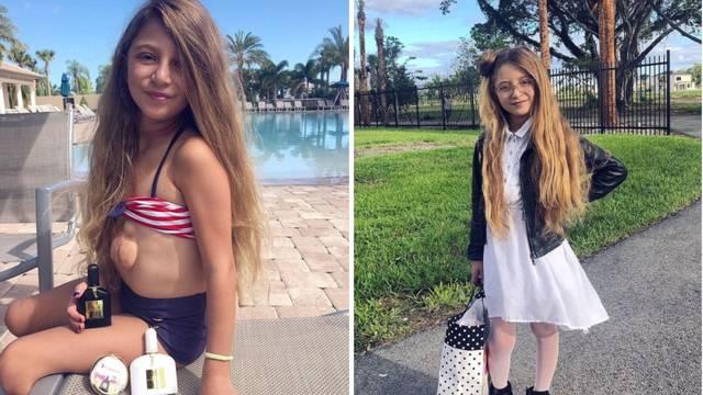 Ona je zaista čudo: Djevojčica živi sa srcem izvan prsnog koša
