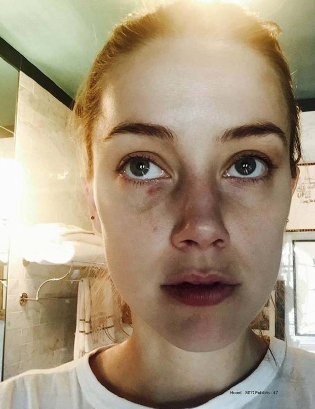 Ill f***ing kill you: Amber Heard pictured with busted lip, facial injuries and clumps of hair missing after telling Johnny Depp she wanted to leave him