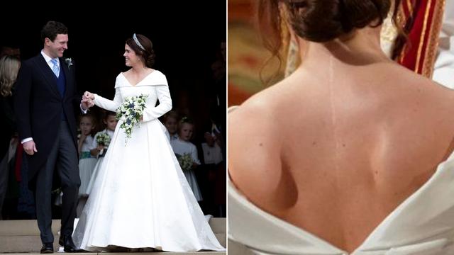 Princeza je ponosna na ožiljak: Odjenula haljinu otvorenih leđa