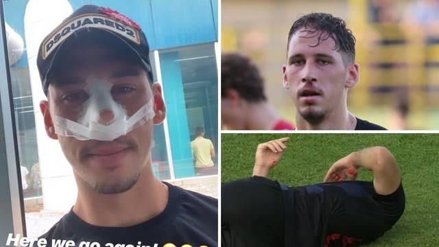Tako se bori za hrvatski dres: Katić igrao slomljenoga nosa!