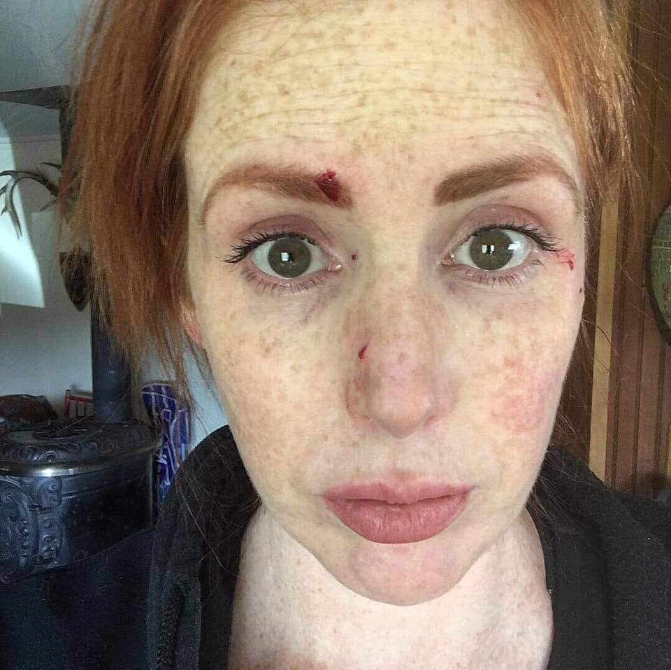 Ogrebla ju mačka pa je završila na infuziji s oteklinama po licu