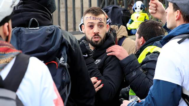 """An injured protester is given help during a demonstration by the """"yellow vests"""" movement in Paris"""