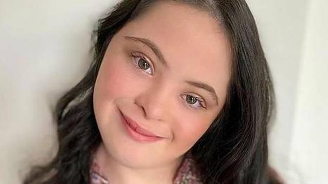 Tinejdžerica postala prvi model sa sindromom Down za Gucci