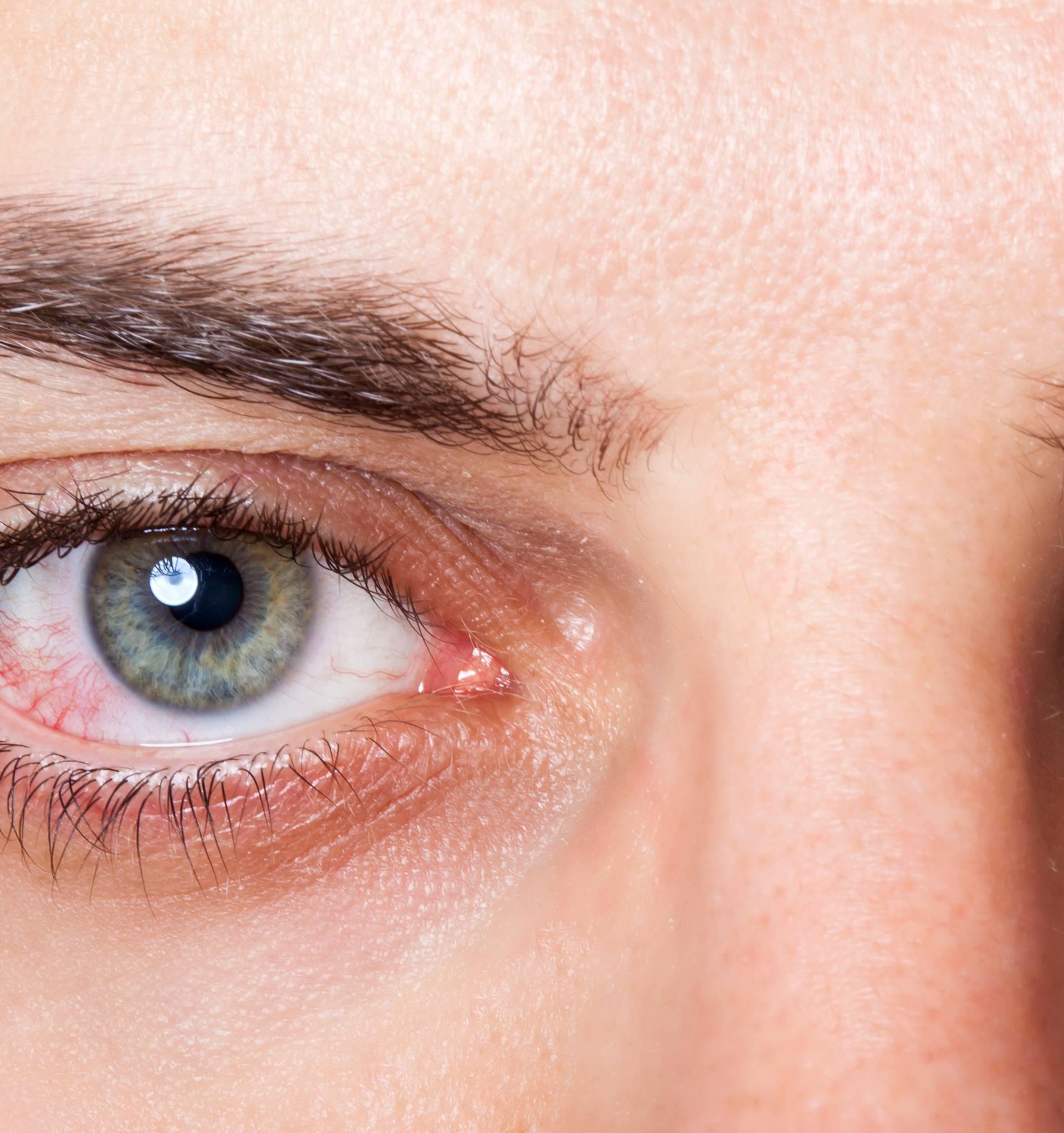 S.O.S. kod ozljede oka: Evo što treba učiniti u svakom slučaju