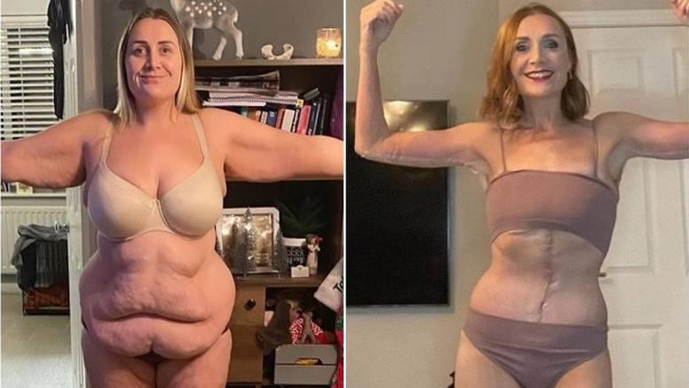 Nevjerojatna transformacija: Mama troje djece potrošila 200 tisuća kuna da bi si bila lijepa