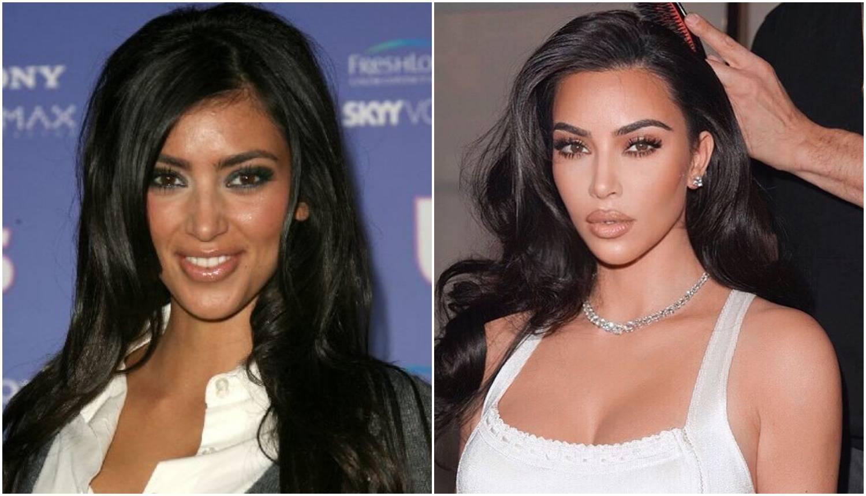 Kim napunila 40: Operacije su joj sve, za slavu je 'kriv' pornić