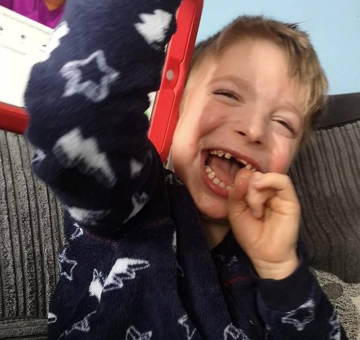 Dječak bez dijagnoze: Oliver ne govori, teško diše, ima rahitis...