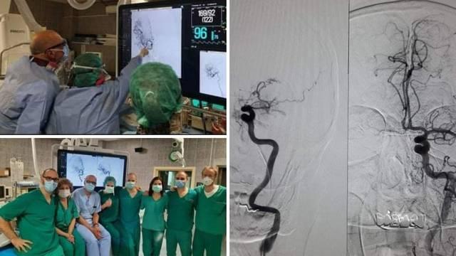 Bio je dug 10 cm: Ovako izgleda ugrušak u mozgu pacijenta s moždanim udarom u Osijeku
