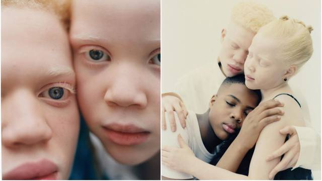 Rade kao  modeli, a glavni cilj im je podići svijest o albinizmu
