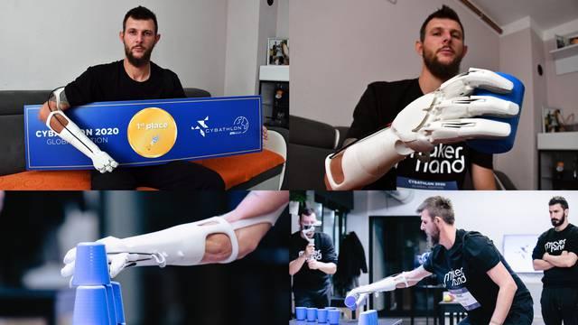 Slavonac Krunoslav: Robotskom rukom  sad mogu i zabijati čavle