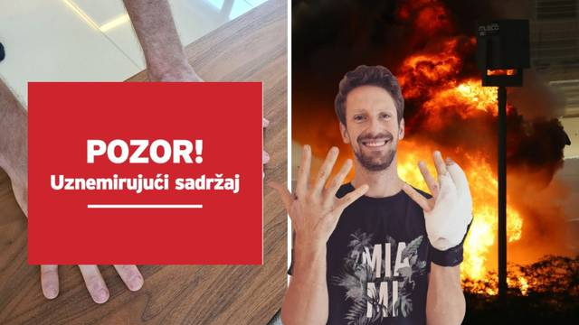Francuz koji je gorio u bolidu skinuo zavoje: Ovako sada izgledaju njegove opečene ruke