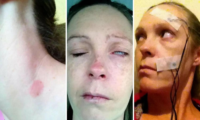 Majka troje djece zbog krpelja ostala paraliziranog lica i oka