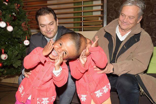 Čekaju čudo: Sijamske blizanke će razdvojiti mađarski liječnik
