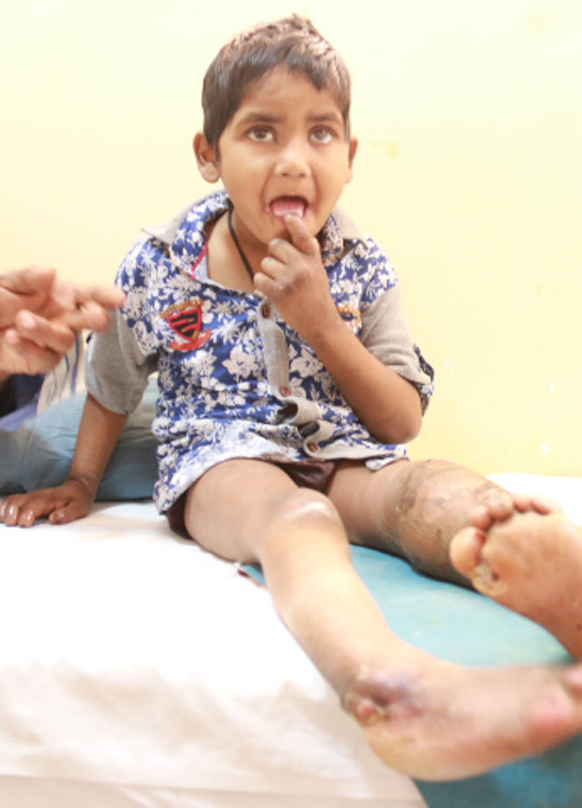 Ne osjećaju bol: Brat i sestra si zbog rijetke bolesti pojeli prste