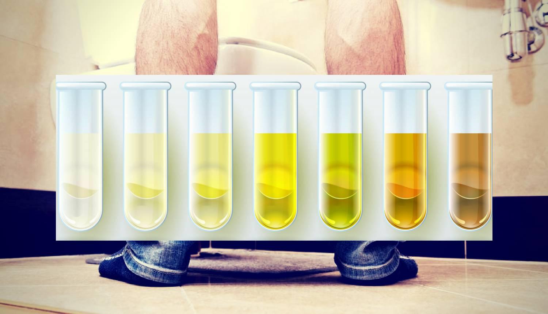 Provjerite boju mokraće: Može ukazati na dehidraciju, tumor...