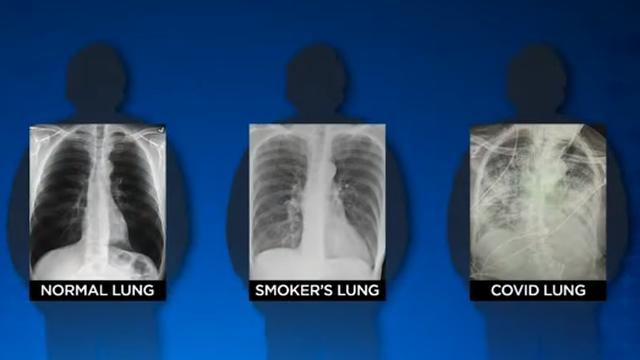 Pluća ljudi koji prebole Covid-19 imaju puno više oštećenja nego pluća dugogodišnjih pušača