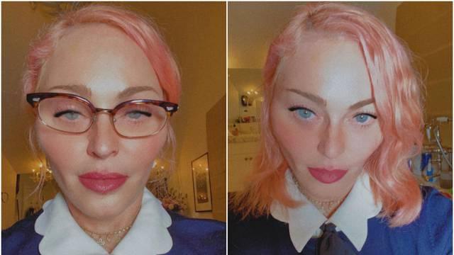 Madonna iznenadila izgledom: 'Kirurg nije dobro obavio posao'