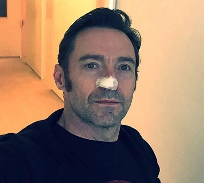 Vratio mu se rak kože: Hugh nikako da pobijedi opaku bolest