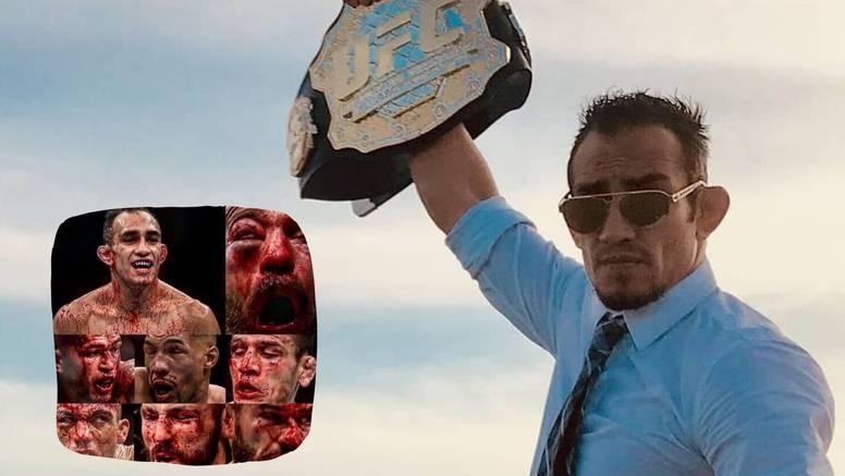 Tony 'krvavo' izazvao Khabiba: Bit će mjesta za 'debelu glavu'