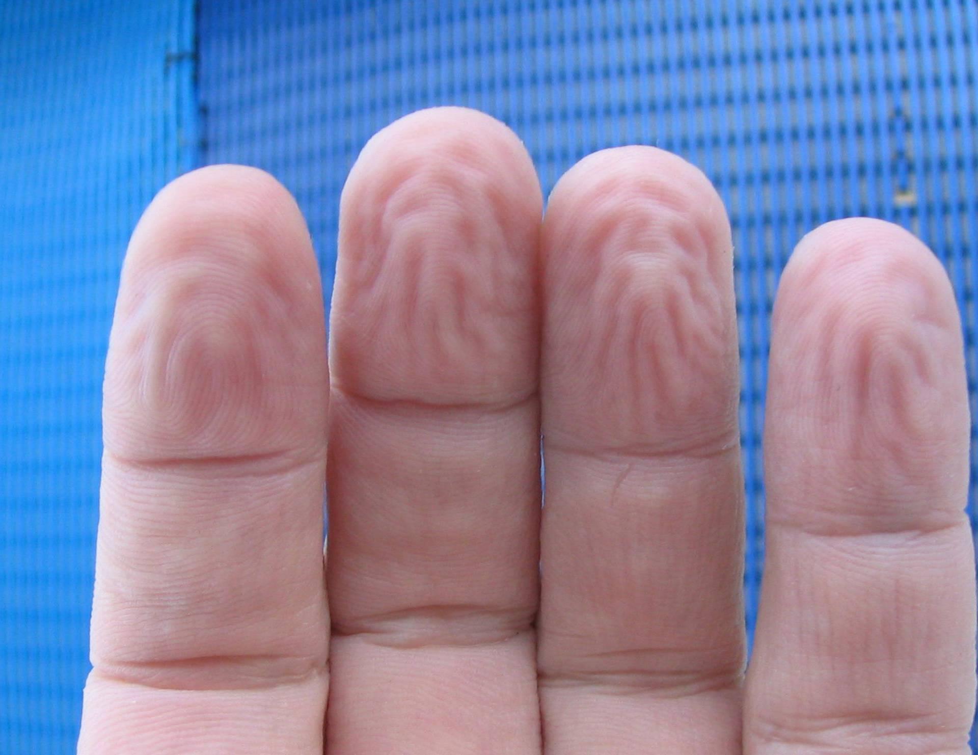 Saznali smo zašto nam se prsti smežuraju kada su dugo u vodi