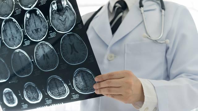 Moždani udar: I mladi ljudi se trebaju redovito pregledavati