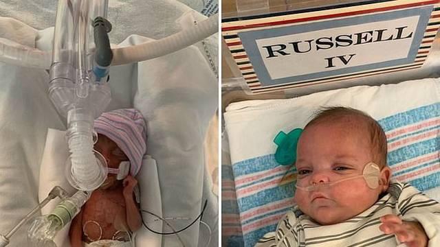 Rodio se sa 453 grama: Nakon 133 dana borbe za život ide kući