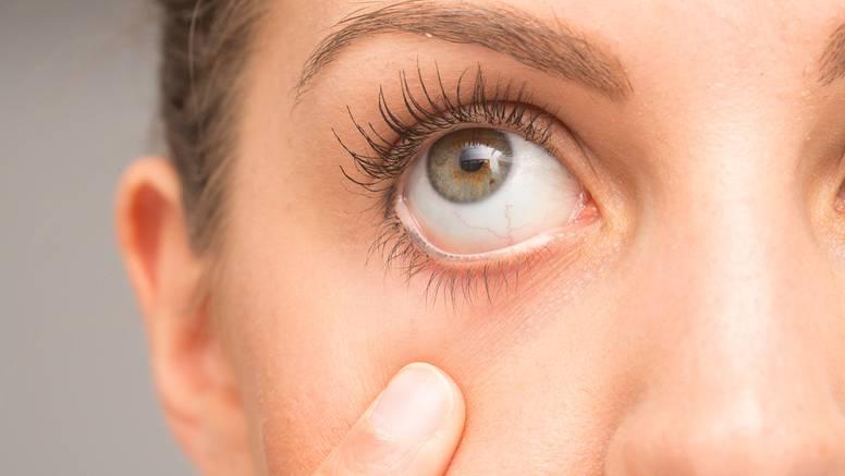 Oči vas iritiraju, peku i suze, imate zamućen vid? Možda bolujete od bolesti suhog oka