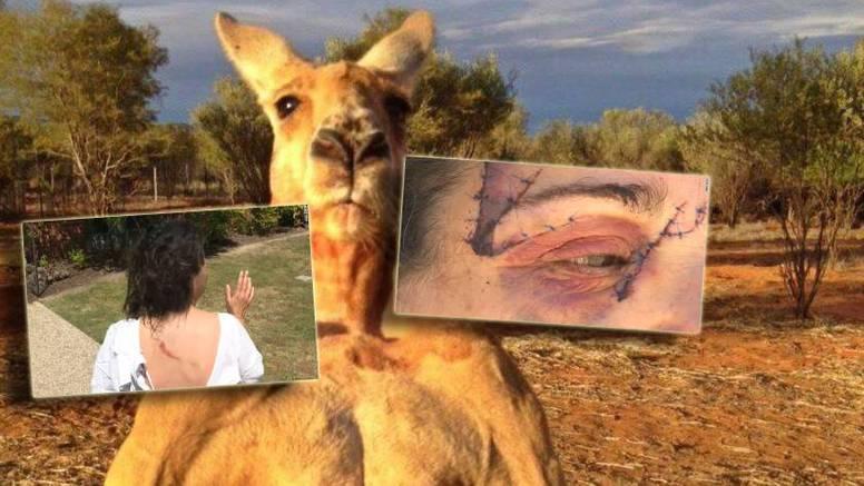 Ženu prebio klokan: 'Zaradila' je 25 šavova, i to samo na licu!