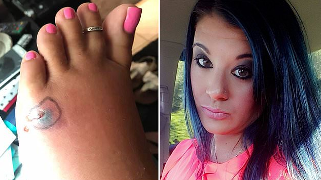 Bakterija joj 'pojela' nogu: Ušla u ocean, više nije mogla hodati