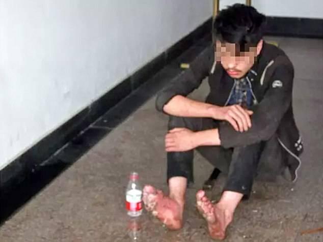 Šest dana igrao igrice: Počelo mu je trunuti tkivo na nogama