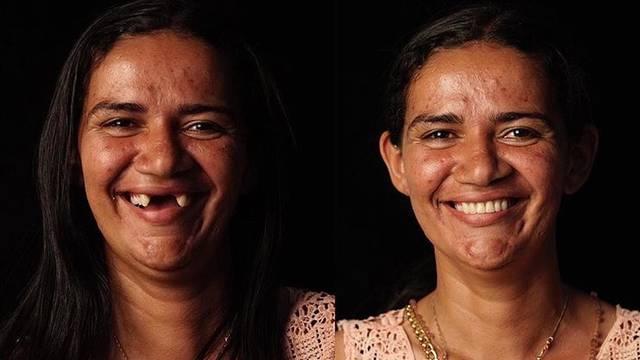 Zubar koji besplatno popravlja zube
