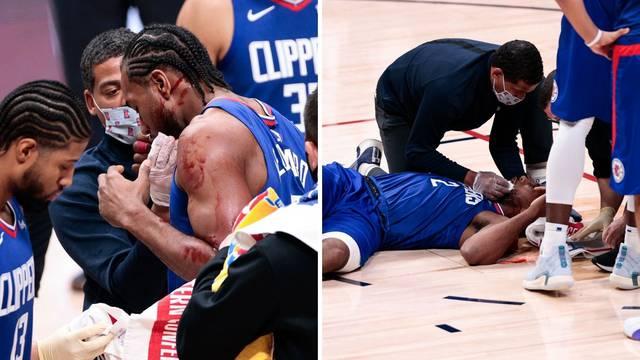 Užas u NBA-u: Zubac gledao u šoku krvavog Kawhija na podu