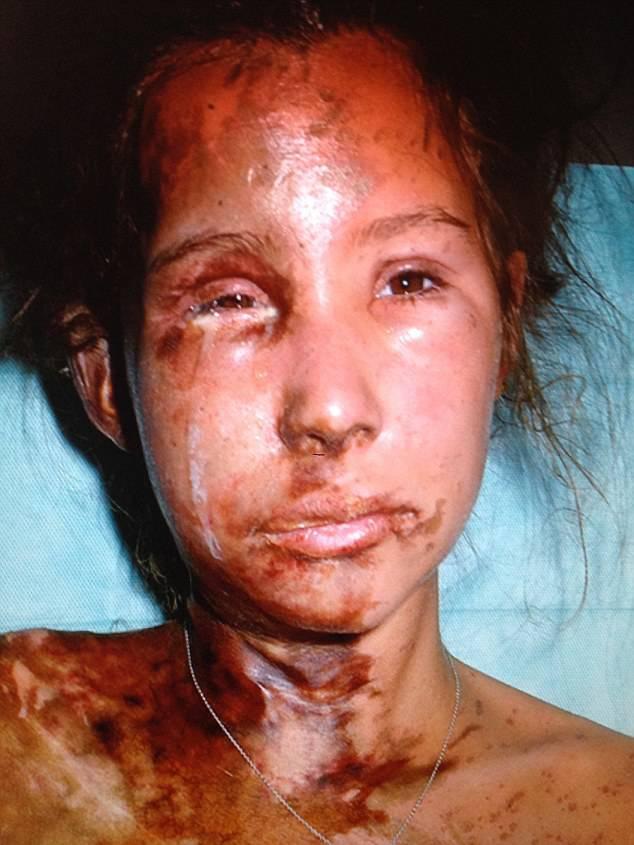 Lice joj ispržili kiselinom: Imala je 70 operacija, danas opet živi