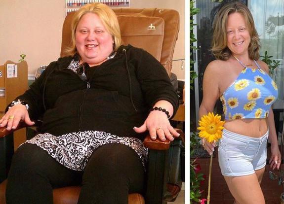 'Bilo je bolno, govorili su mi da sam kit, pa sam skinula 75 kg'
