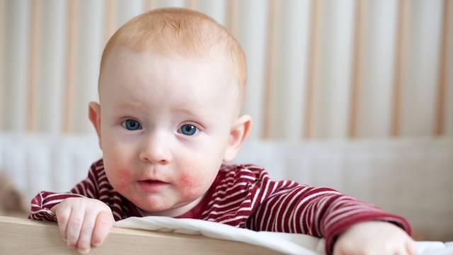 Atopijski dermatitis: Problema s kožom ima svako peto dijete
