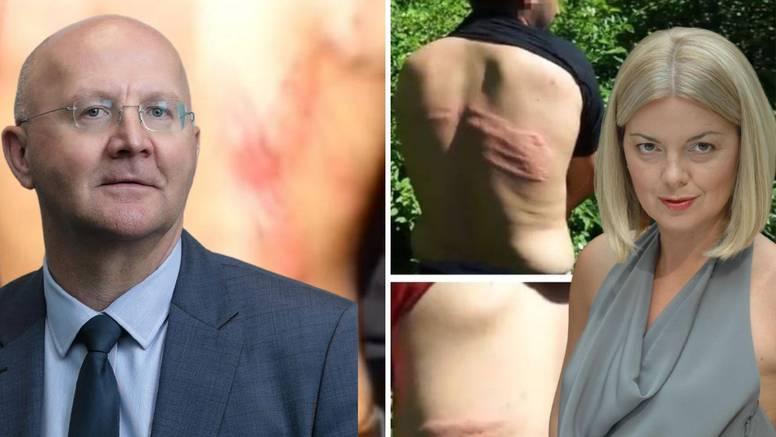 Ravnatelj Zavoda za javno zdravstvo: 'Nespretno sam to napisao, ne odobravam nasilje'