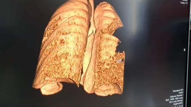 Pulmolog pokazao snimku pluća mladića oboljelog od Covida-19: 'To je potpuna destrukcija tkiva'