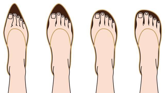 Čukljevi se nasljeđuju, a stanje dodatno pogoršava uska obuća