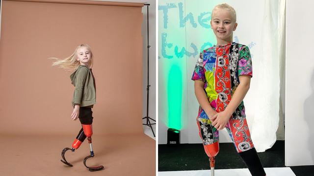 Daisy (9) amputirali noge: Trči, bavi se gimnastikom i model je!