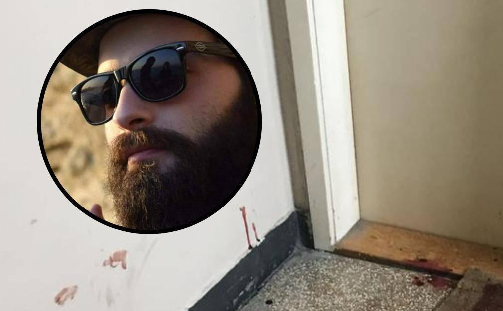 Zatukao susjeda batom, mora opet na vještačenje u Vrapče