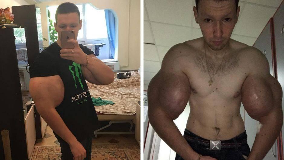 Ruski Popaj debitirao u MMA, ali mogao bi ostati bez ruku!