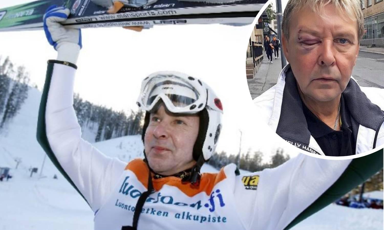 Matti Nykänen: Od svjetskog prvaka do bankrota i zatvora...